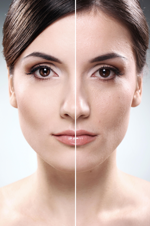Как сделать лицо белым и матовым
